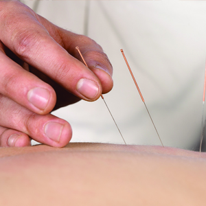 Acupuncturist in Seattle & Bellevue, WA - Acupuncture