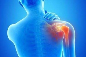 Best Herbal Formulas for Frozen Shoulder